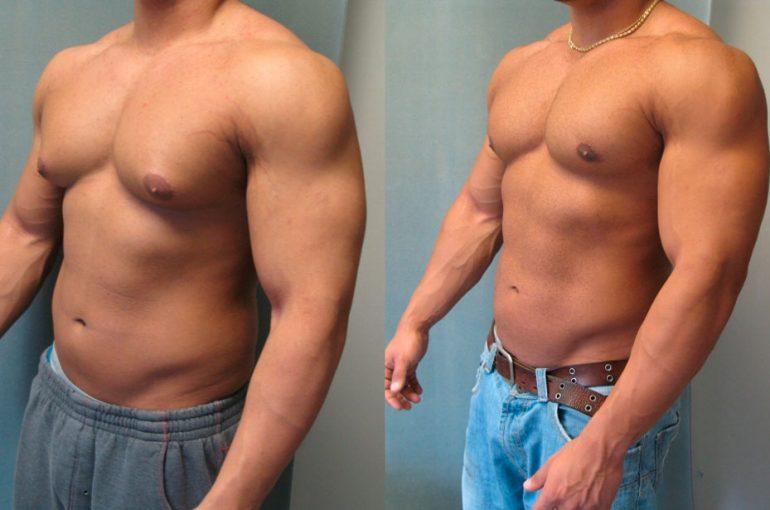 Gynaecomastie – Problemen met vrouwelijke bodybuilding